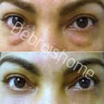 Blepharoplasty Surgery India
