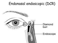 Endoscopic-Endonasal-DCR-Surgery
