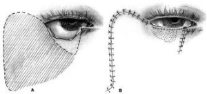 mustarde-cheek-rotation-flap